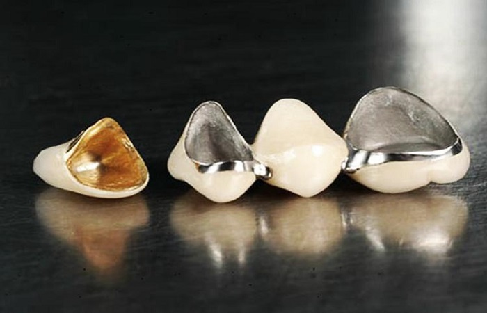 материал Металлокерамика